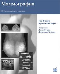 Маммография. 100 клинических случаев