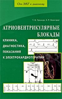 Атриовентрикулярные блокады. Клиника, диагностика, показания в электрокардиотерапии ( 978-5-8174-0296-4 )