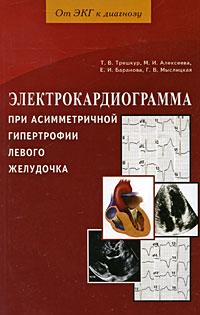Электрокардиограмма при асимметричной гипертрофии левого желудочка ( 978-5-8174-0298-8 )