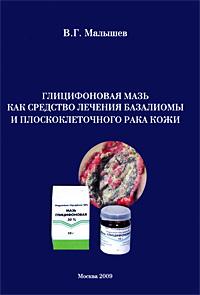 Глицифоновая мазь как средство лечения базалиомы и плоскоклеточного рака кожи. В. Г. Малышев