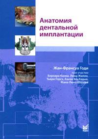 Анатомия дентальной имплантации