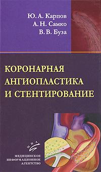 Коронарная ангиопластика и стентирование