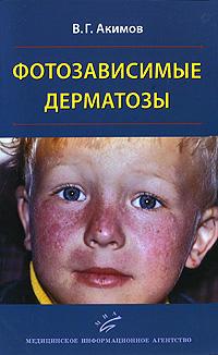 Фотозависимые дерматозы. В. Г. Акимов