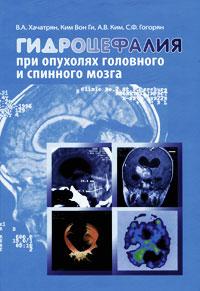 Гидроцефалия при опухолях головного и спинного мозга