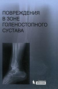 Повреждения в зоне голеностопного сустава (+ CD-ROM) ( 978-5-9963-0298-7 )