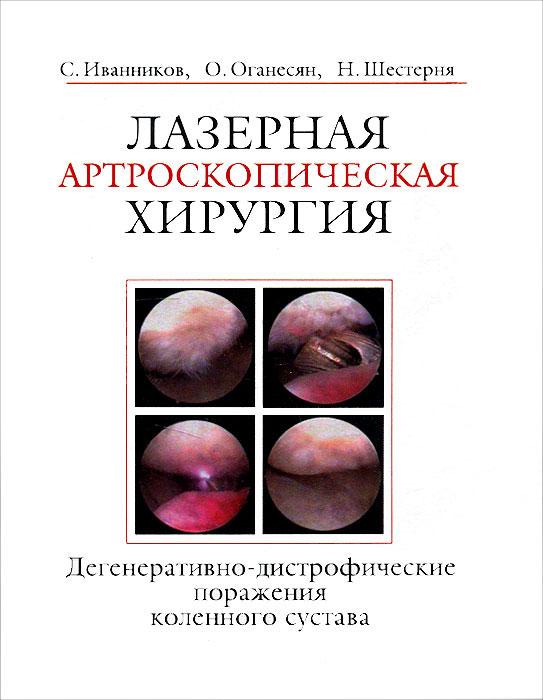 Лазерная артроскопическая хирургия. Дегенеративно-дистрофические поражения коленного сустава