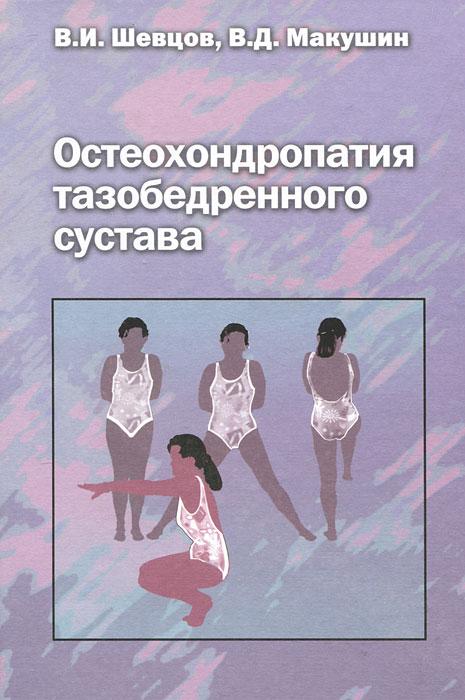 Остеохондропатия тазобедренного сустава