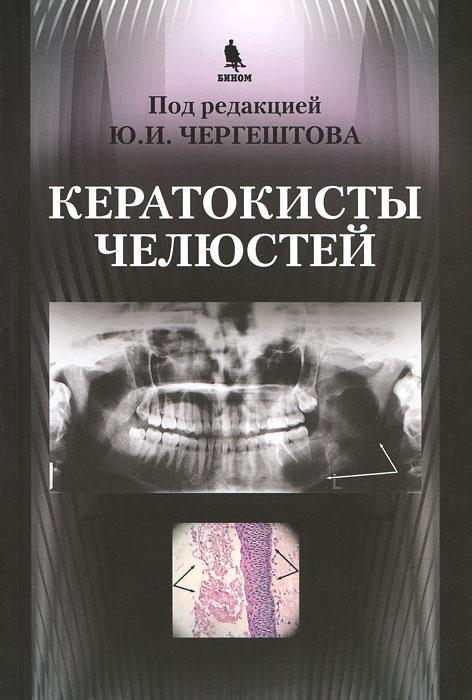 Кератокисты челюстей ( 978-5-9518-0456-3 )