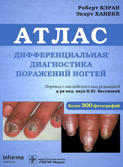 Дифференциальная диагностика поражения ногтей. Атлас ( 978-5-9704-1960-1 )