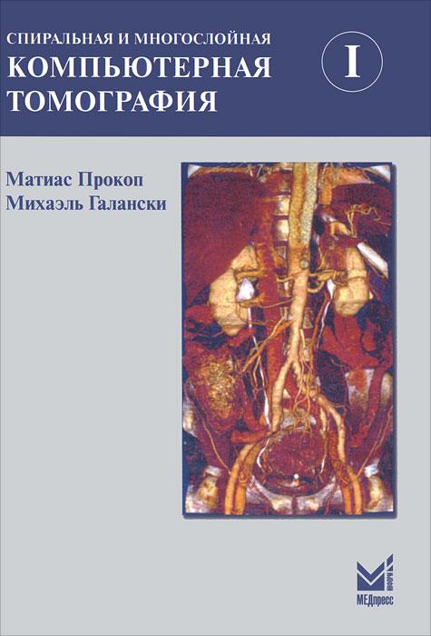 Спиральная и многослойная компьютерная томография. В 2 томах. Том 1