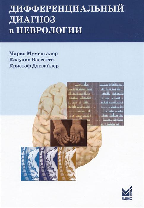 Дифференциальный диагноз в неврологии. Марко Мументалер, Клаудио Бассетти, Кристоф Дэтвайлер