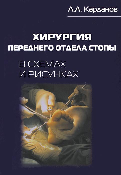 Хирургия переднего отдела стопы в схемах и рисунках. А. А. Карданов