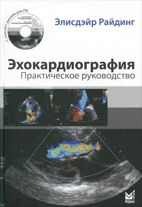 Эхокардиография. Практическое руководство. 2-е изд. +CD. Райдинг Э.. Райдинг Э.