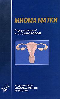 Под редакцией И. С. Сидоровой Миома матки