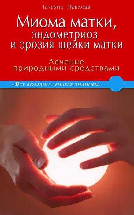 Миома матки, эндометриоз и эрозия шейки матки. Лечение природными средствами ( 978-5-4236-0077-8 )