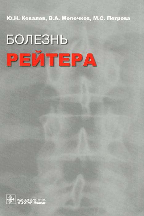 Болезнь Рейтера ( 5-9704-0157-9, 5-9704-0130-7 )