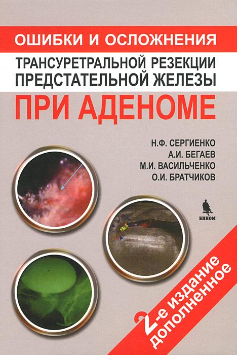 Ошибки и осложнения трансуретральной резекции предстательной железы при аденоме ( 978-5-9518-0515-7 )