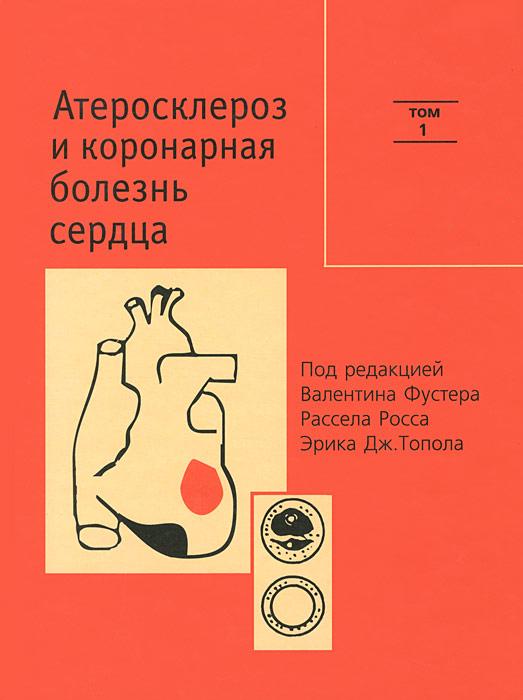 Атеросклероз и коронарная болезнь сердца. В 2 томах. Том 1