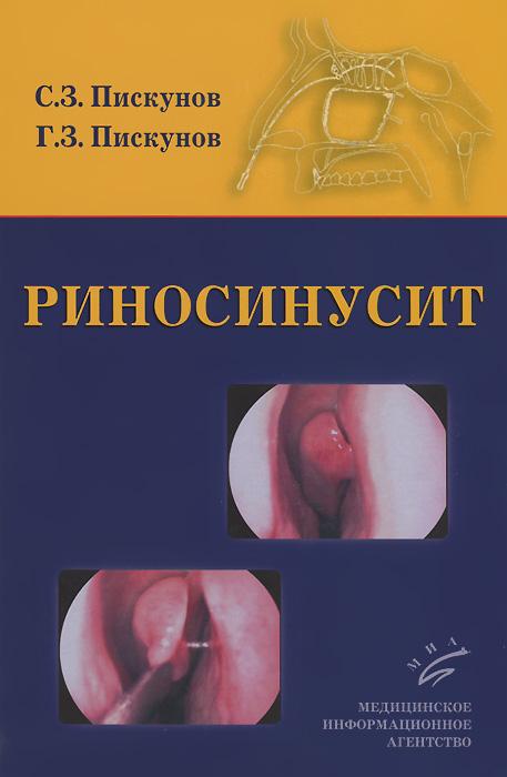 Риносинусит