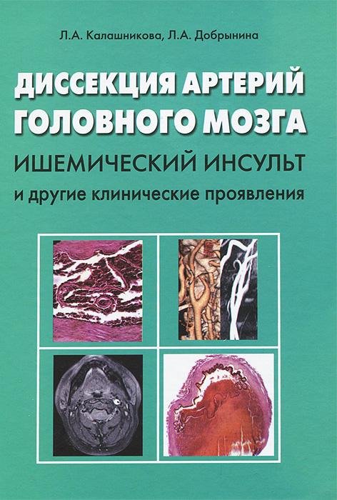 Диссекция артерий головного мозга. Ишемический инсульт и другие клинические проявления