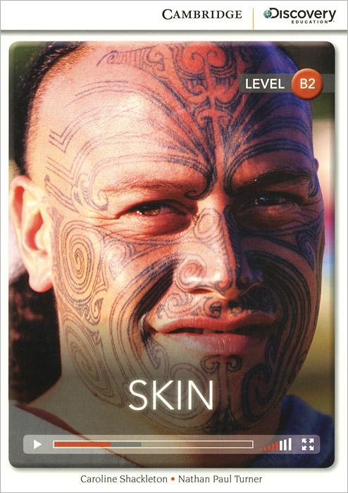 Skin: Level B2
