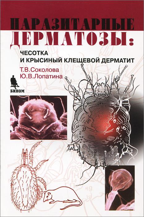 Паразитарные дерматозы. Чесотка и крысиный клещевой дерматит ( 5-9518-0043-9 )