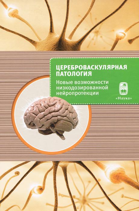 Цереброваскулярная патология. Новые возможности низкодозированной нейропротекции