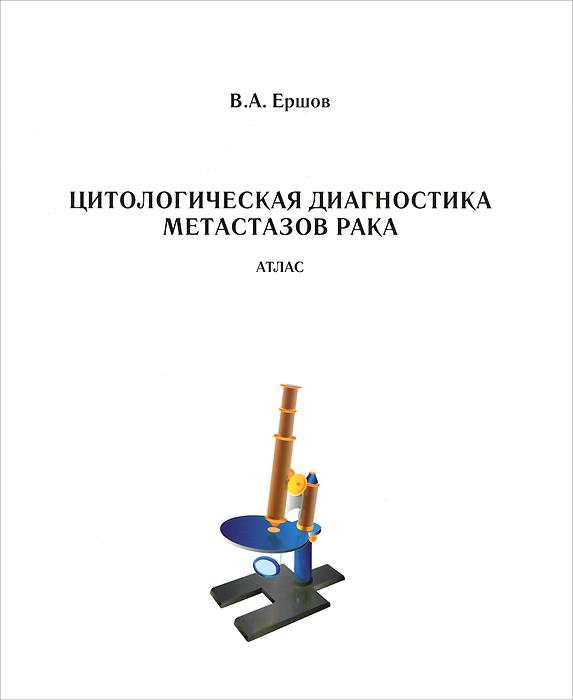 Цитологическая диагностика метастазов рака. Атлас