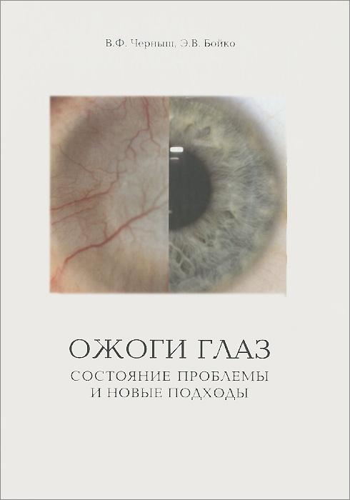 Ожоги глаз. Состояние проблемы и новые подходы
