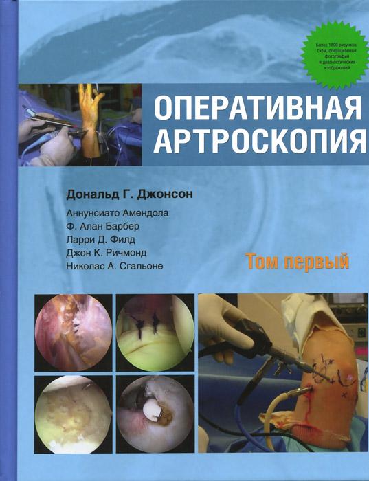 Оперативная артроскопия. В 2 томах. Том 1