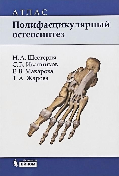 Полифасцикулярный остеосинтез. Атлас