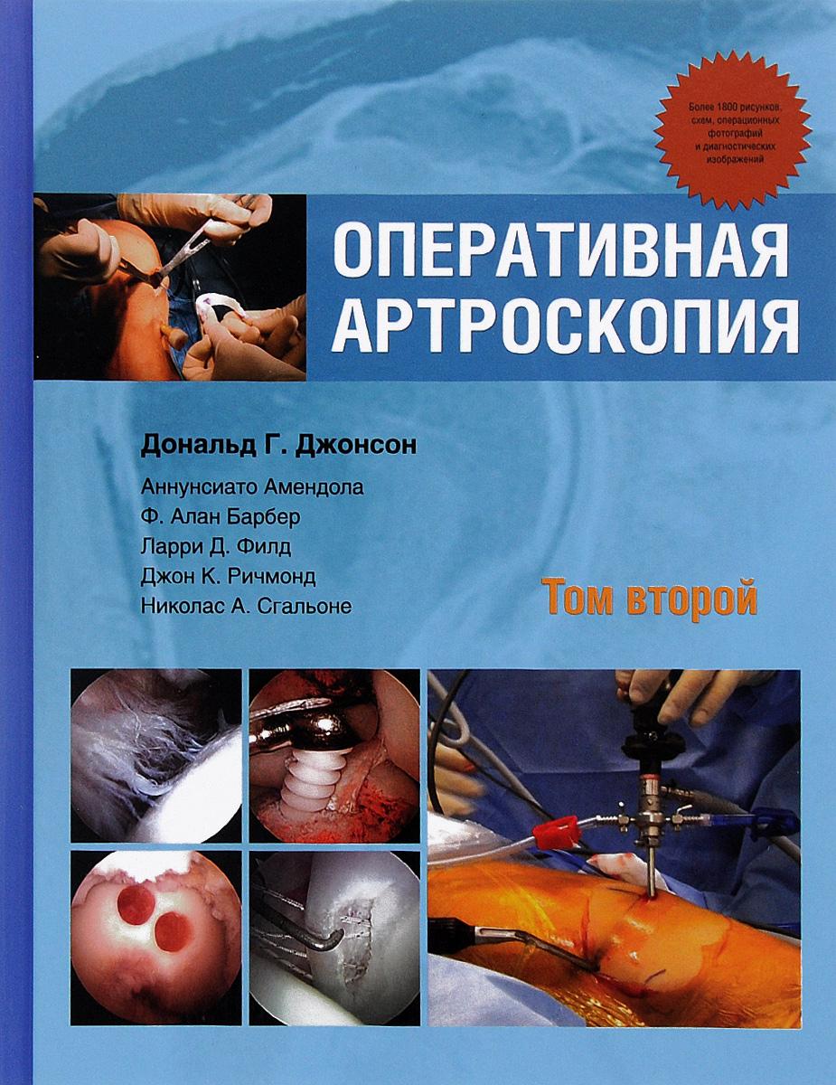 Оперативная артроскопия. В 2 томах. Том 2
