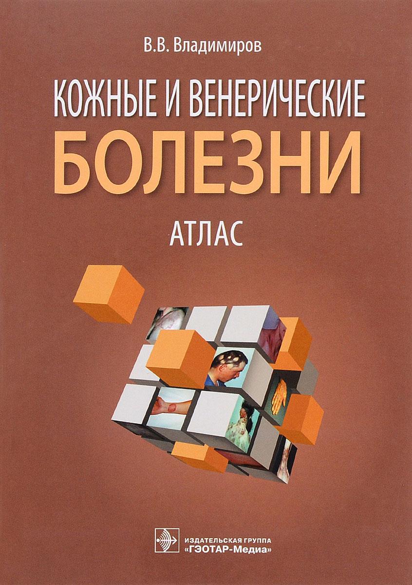 Кожные и венерические болезни. Атлас. Учебное пособие ( 978-5-9704-3546-5 )