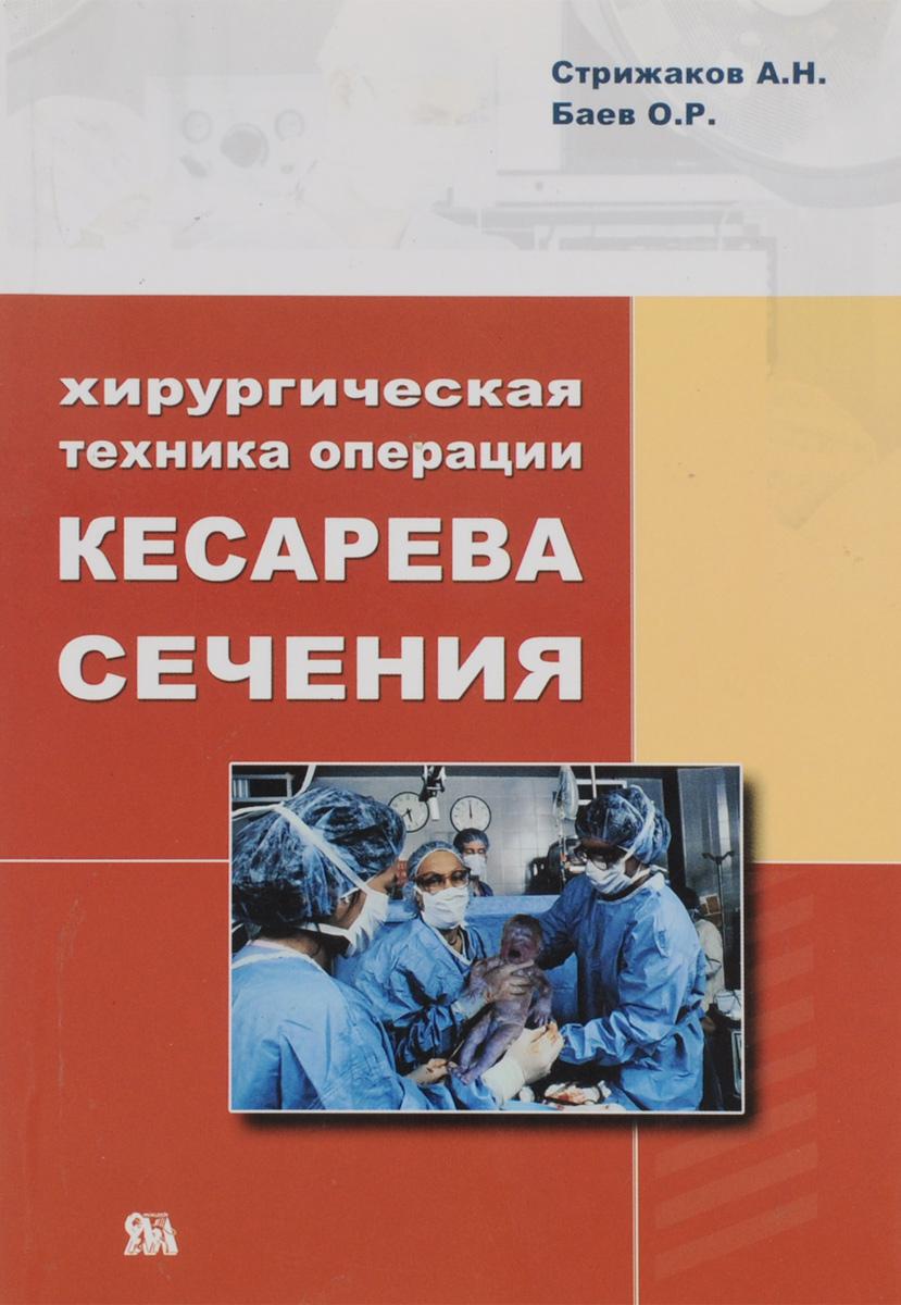 Хирургическая техника операции кесарева сечения