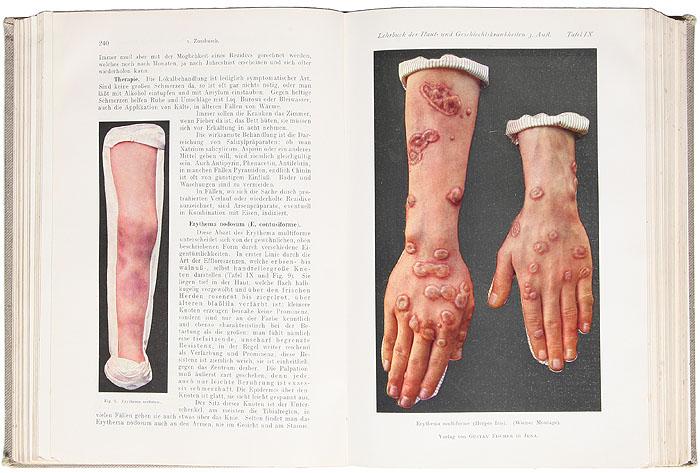 Руководство по кожным и венерическим заболеваниям