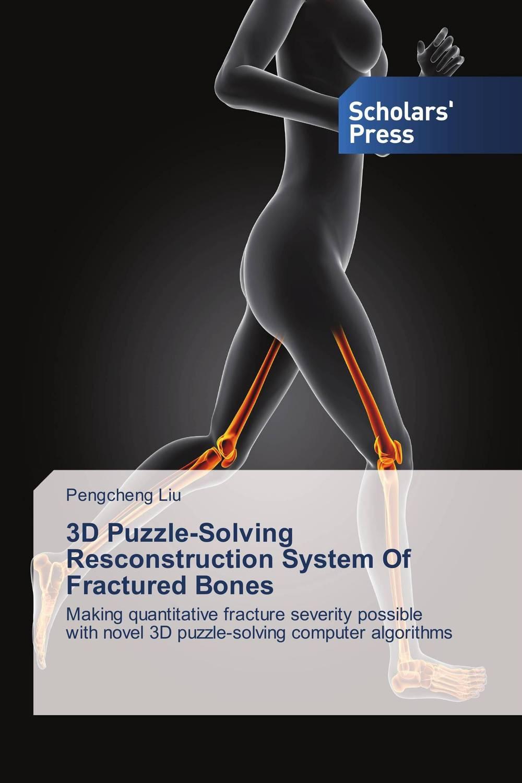 Pengcheng Liu. 3D Puzzle-Solving Resconstruction System Of Fractured Bones