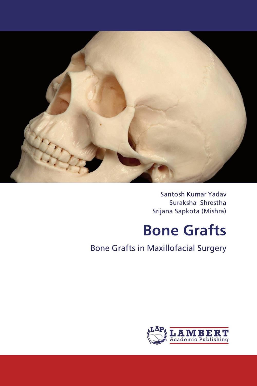 Santosh Kumar Yadav,Suraksha Shrestha and Srijana Sapkota (Mishra) Bone Grafts santosh kumar singh biodiversity assessment in ocimum using molecular markers