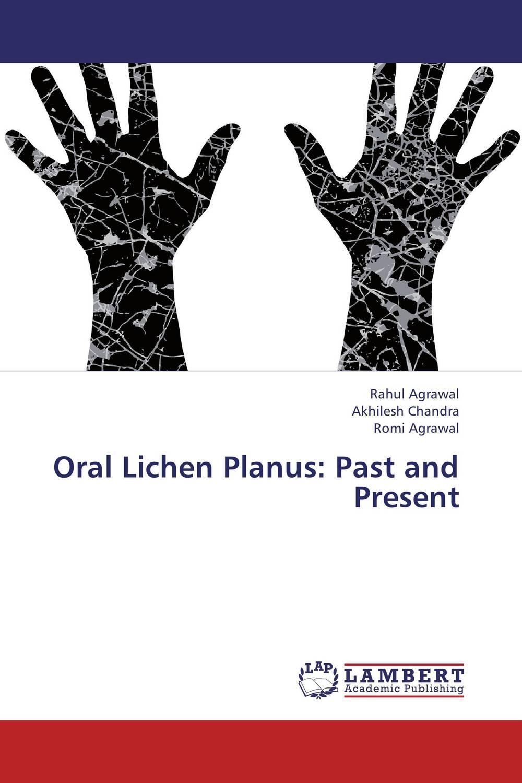 Oral Lichen Planus: Past and Present гель лак для ногтей sally hansen miracle gel 240 цвет 240 b girl variant hex name 79c8b8